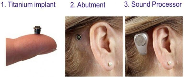BAHA (Bone Anchored Hearing Aids)