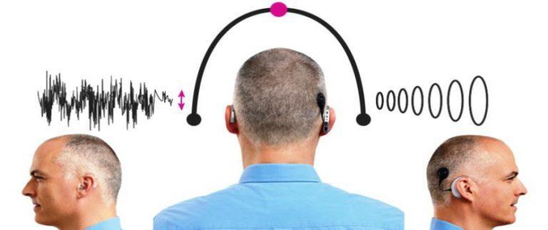 Bimodal Hearing Aids