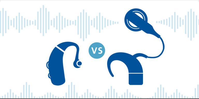 Hearing Aids Vs Cochlear Implant